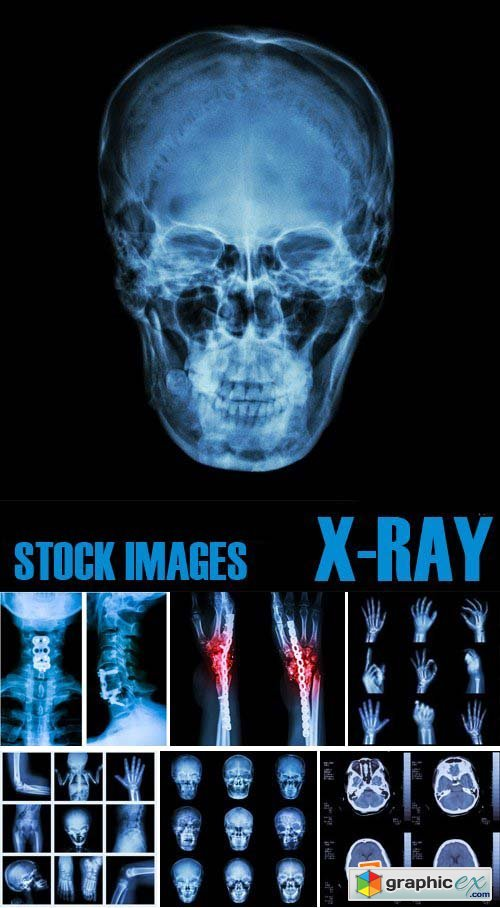 Stock Photos - X-ray, Roentgenogram, 25xJPG