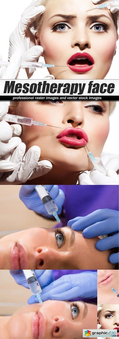 Mesotherapy face