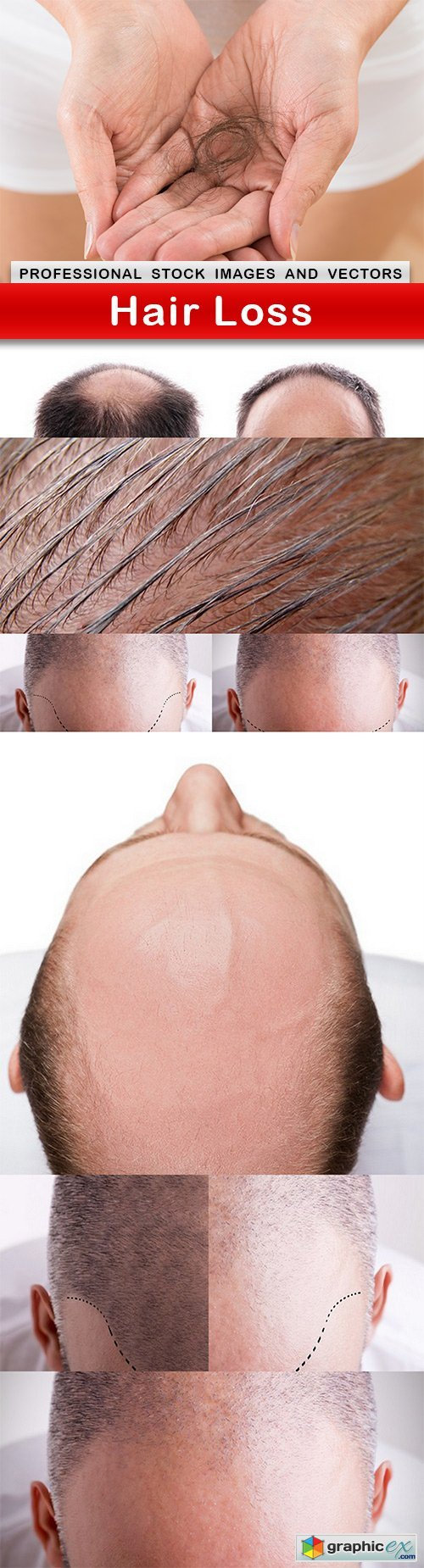 Hair Loss - 8 UHQ JPEG