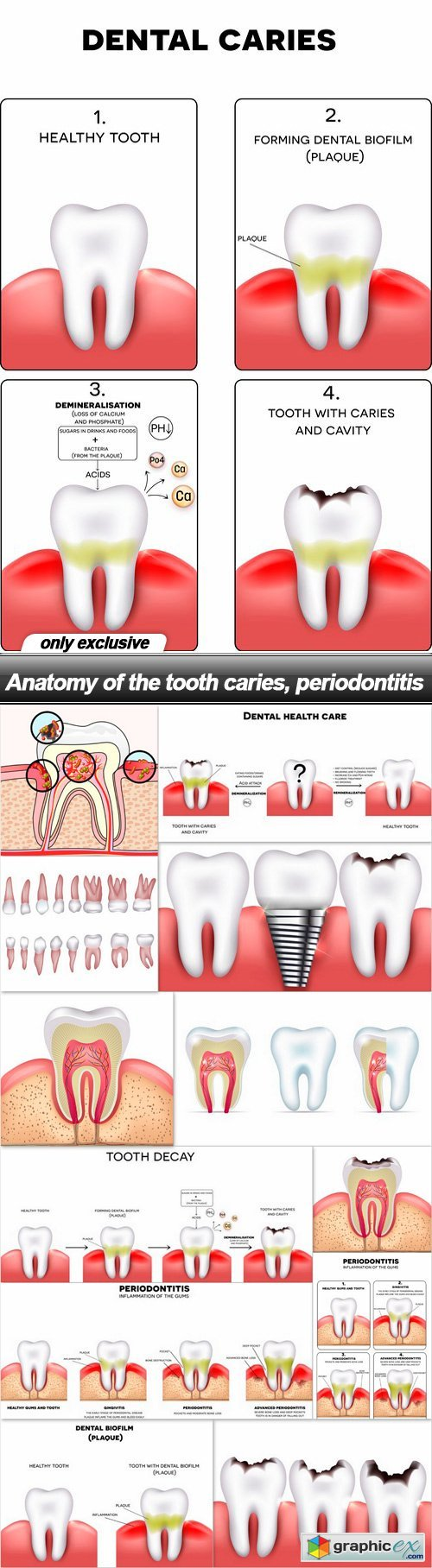 Anatomy of the tooth caries, periodontitis - 13 EPS