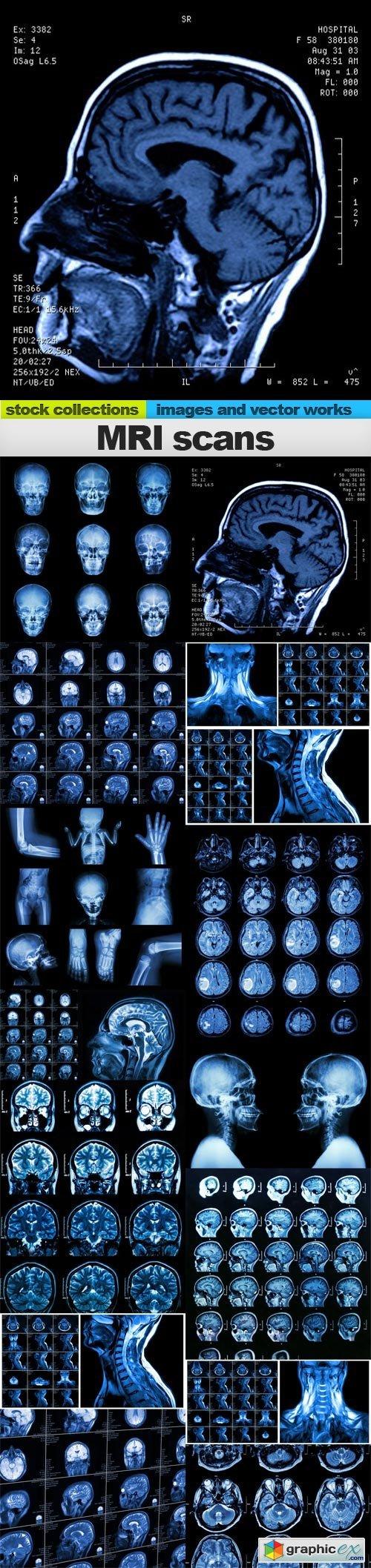 MRI scans, 15 x UHQ JPEG